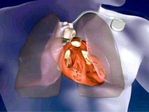 dibujo de un marcapasos implantado